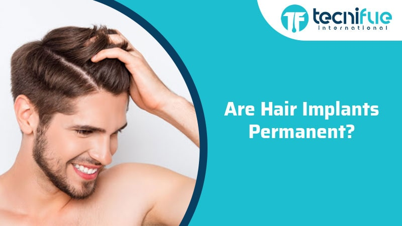 Are Hair Implants Permanent?, Are Hair Implants Permanent?