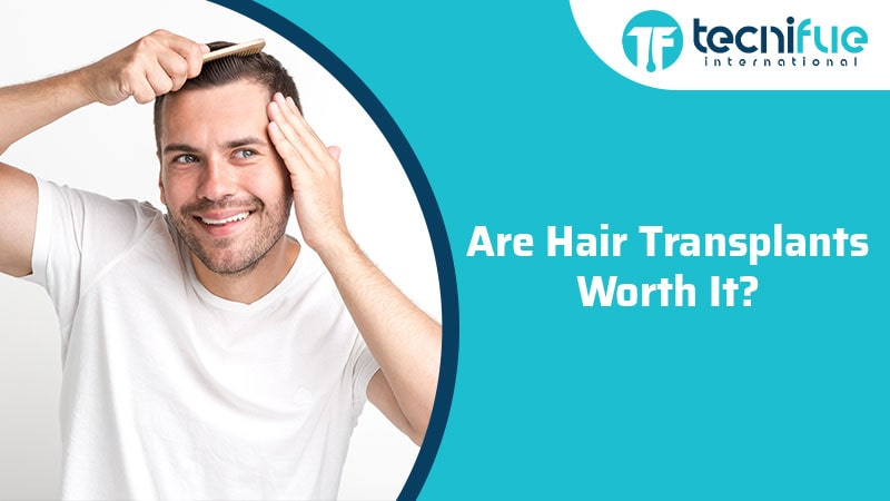 Are Hair Transplants Worth It?, Are Hair Transplants Worth It?