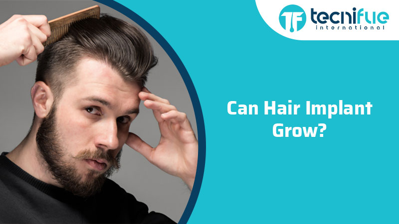 Can Hair Implants Grow?, Can Hair Implants Grow?