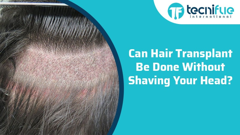 Can Hair Transplant Be Done Without Shaving Your Head?