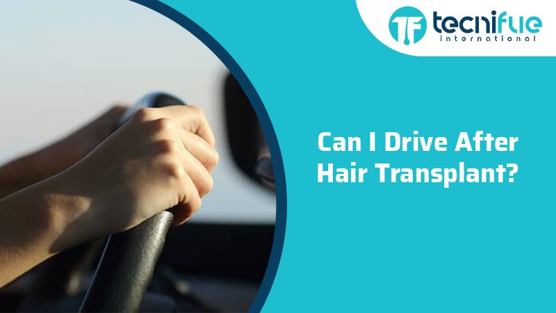 Can i drive after hair transplant