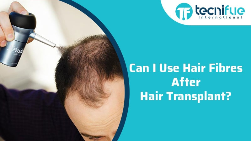 Can I Use Hair Fibres After Hair Transplant?, Can I Use Hair Fibres After Hair Transplant?