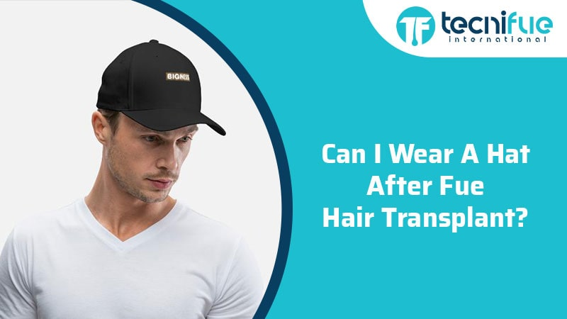 Can I Wear A Hat After FUE Hair Transplant?