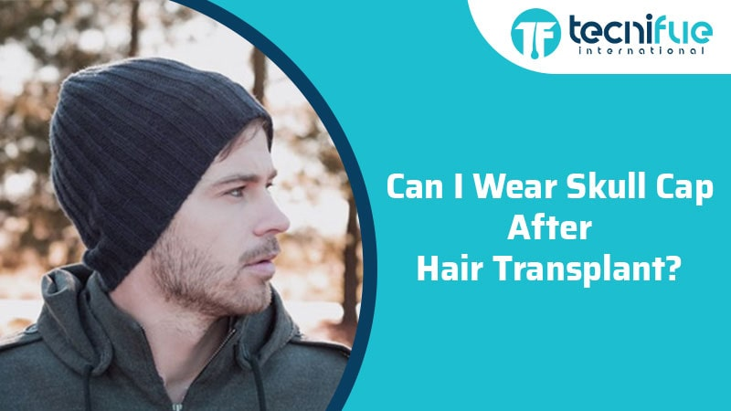 Can I Wear Skull Cap After Hair Transplant?