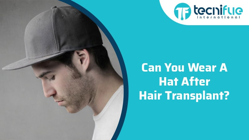 Can You Wear A Hat After Hair Transplant?