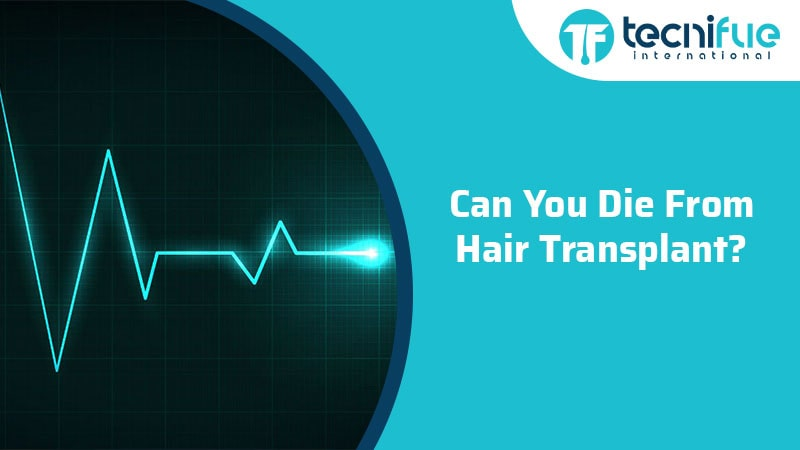 Can You Die From Hair Transplant?, Can You Die From Hair Transplant?