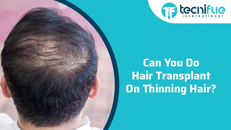 Can you do hair transplant on thinning hair?