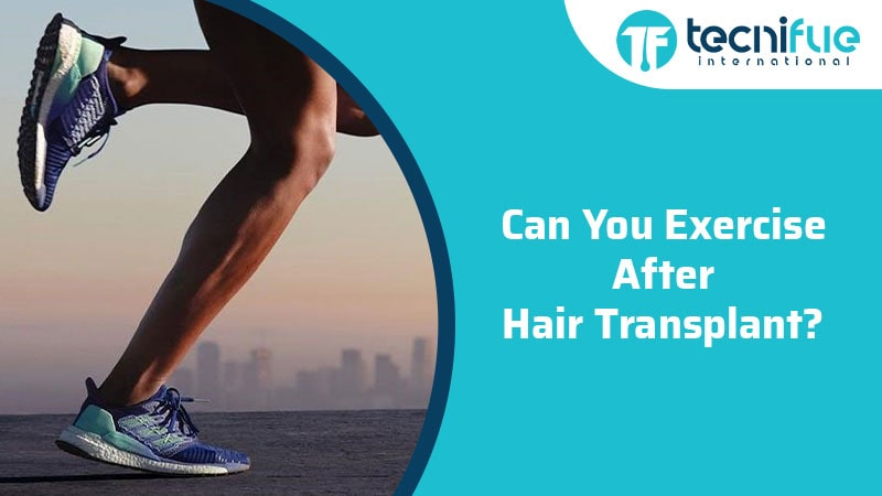 Can You Exercise After Hair Transplant?, Can You Exercise After Hair Transplant?