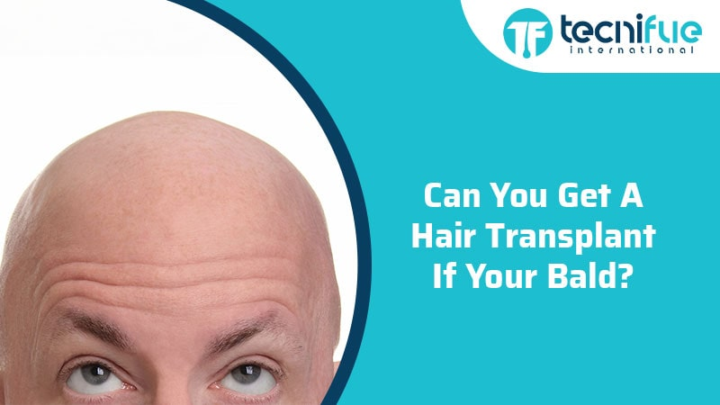 Can You Get A Hair Transplant If Your Bald?