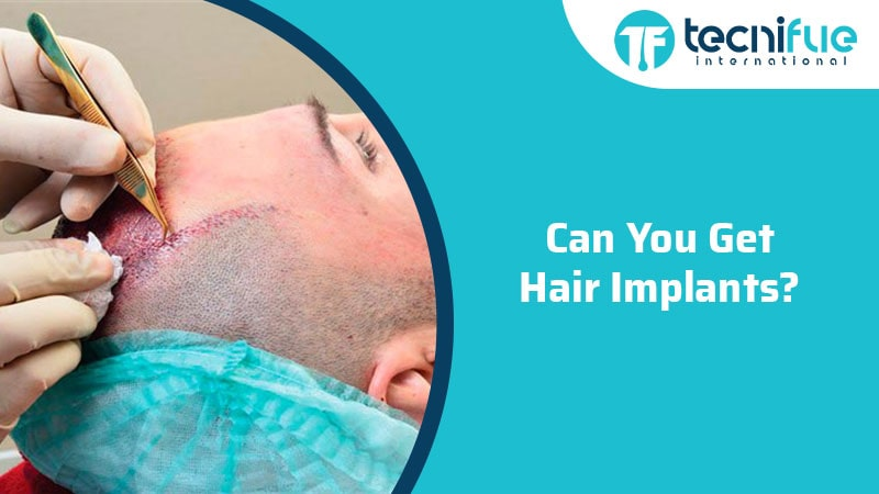 Can You Get Hair Implants?