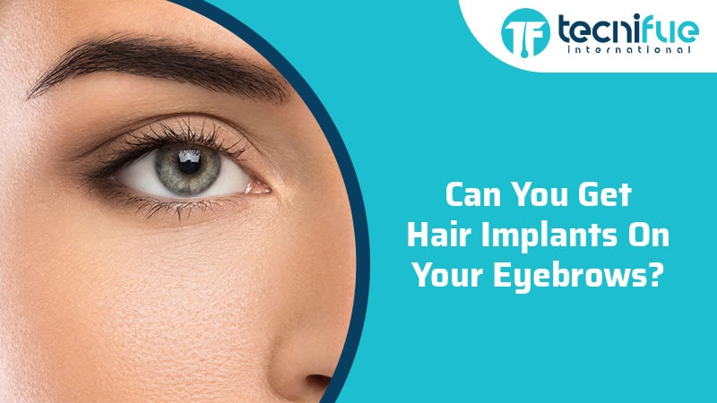 Can You Get Hair Implants On Your Eyebrows?, Can You Get Hair Implants On Your Eyebrows?