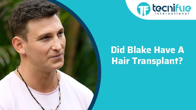 Did Blake Have A Hair Transplant?, Did Blake Have A Hair Transplant?