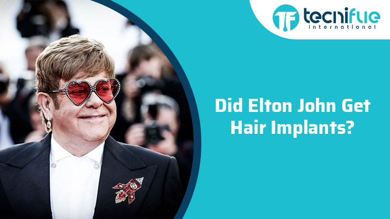 Did Elton John Get Hair Implants?, Did Elton John Get Hair Implants?