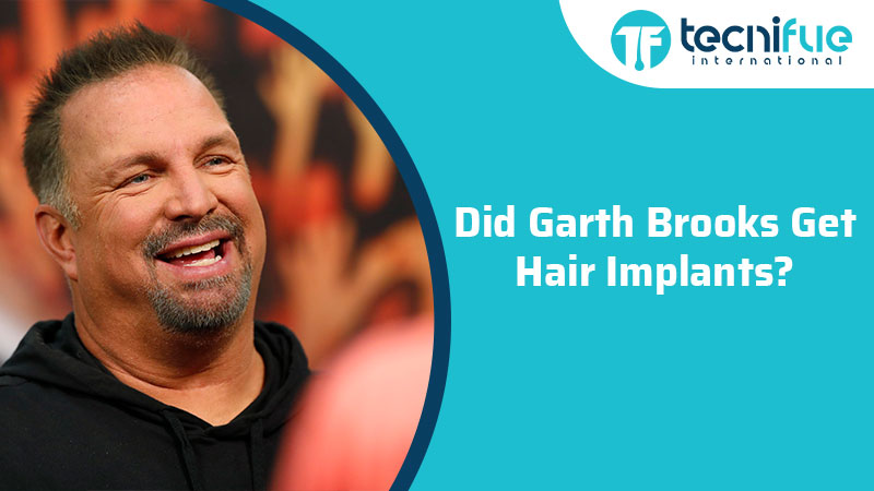 Did Garth Brooks Get Hair Transplant?, Did Garth Brooks Get Hair Transplant?
