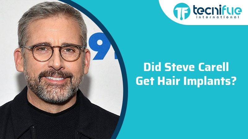 Did Steve Carell Get Hair Implants?, Did Steve Carell Get Hair Implants?