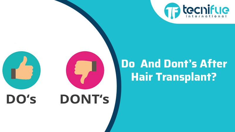 Do And Don'ts After Hair Transplant, Do And Don'ts After Hair Transplant