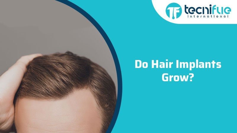 Do Hair Implants Grow?, Do Hair Implants Grow?