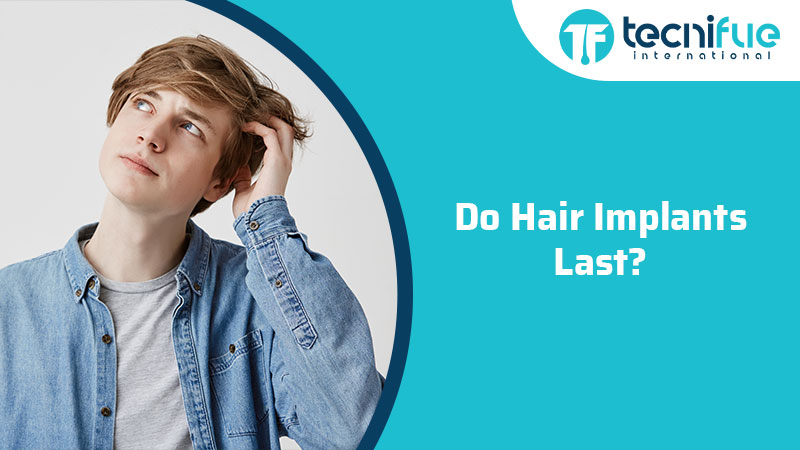 Do Hair Implants Last?, Do Hair Implants Last?