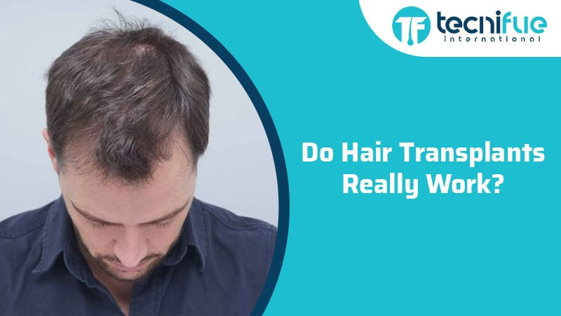 Do Hair Transplants Really Work?, Do Hair Transplants Really Work?