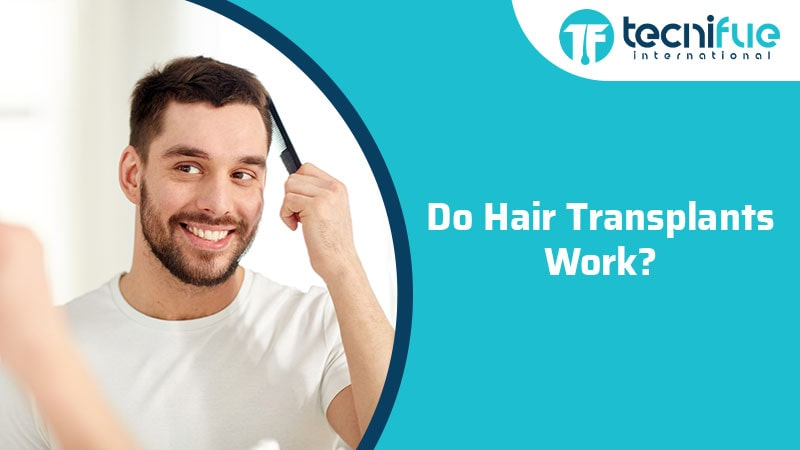 Do Hair Transplants Work?, Do Hair Transplants Work?