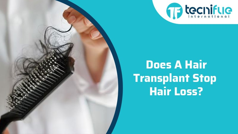 Does A Hair Transplant Stop Hair Loss?, Does A Hair Transplant Stop Hair Loss?