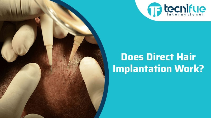Does Direct Hair Implantation Work?