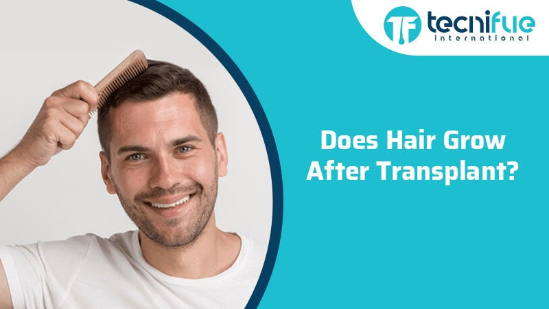 Does Hair Grow After Transplant?, Does Hair Grow After Transplant?