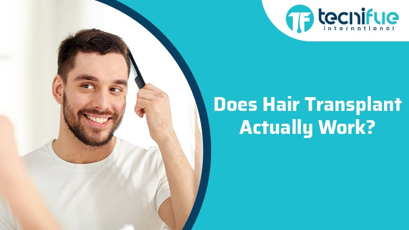 Does Hair Transplant Actually Work?, Does Hair Transplant Actually Work?
