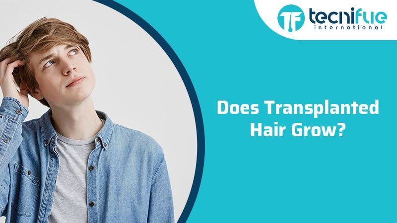 Does Transplanted Hair Grow?, Does Transplanted Hair Grow?
