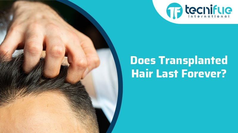 Does Transplanted Hair Last Forever?, Does Transplanted Hair Last Forever?