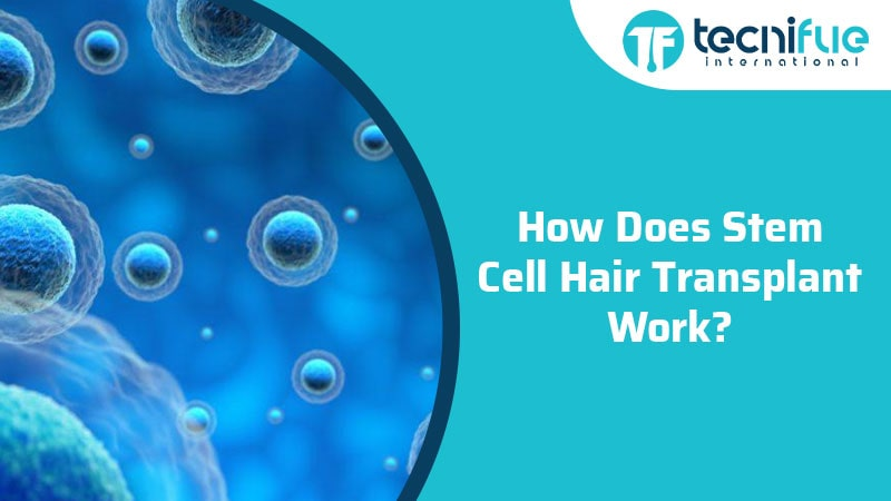 How Does Stem Cell Hair Transplant Work?