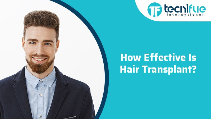 How Effective Is Hair Transplant?