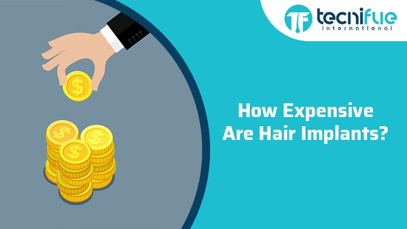 How Expensive Are Hair Implants?, How Expensive Are Hair Implants?