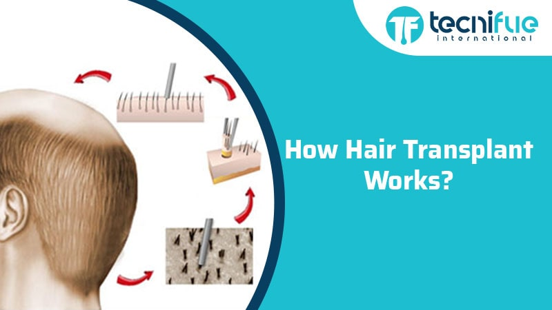 How Hair Transplant Works?