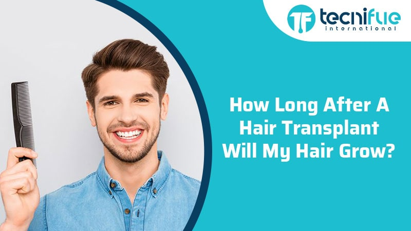 How Long After A Hair Transplant Will My Hair Grow?, How Long After A Hair Transplant Will My Hair Grow?