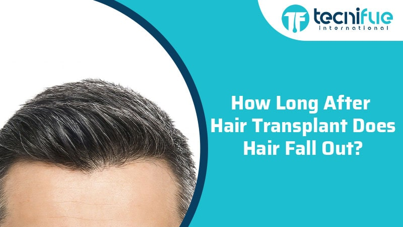 How Long After Hair Transplant Does Hair Fall Out?, How Long After Hair Transplant Does Hair Fall Out?