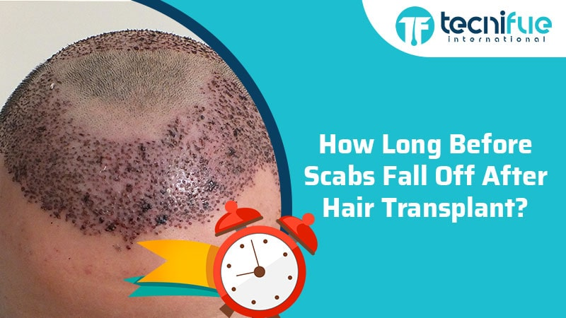 How Long Before Scabs Fall Off After Hair Transplant?