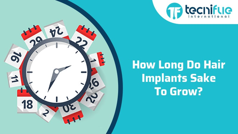 How Long Do Hair Implants Take To Grow?, How Long Do Hair Implants Take To Grow?