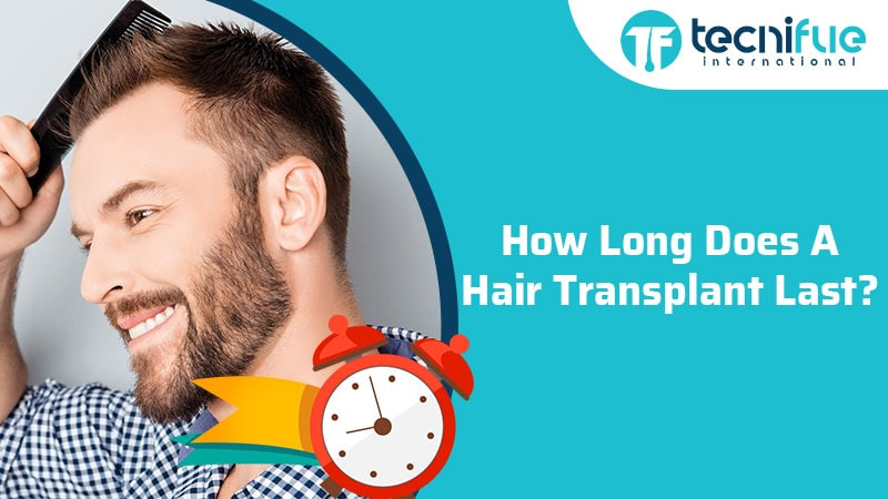 How Long Does A Hair Transplant Last?