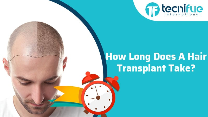 How Long Does A Hair Transplant Take?, How Long Does A Hair Transplant Take?