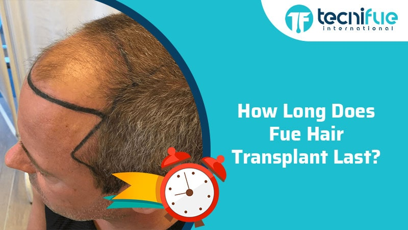 How Long Does FUE Hair Transplant Last?, How Long Does FUE Hair Transplant Last?