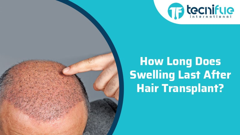 How Long Does Swelling Last After Hair Transplant