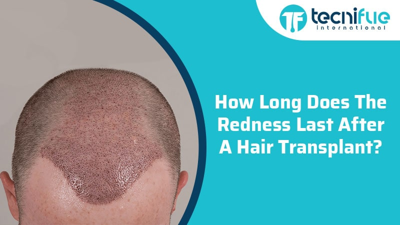 How Long Does The Redness Last After A Hair Transplant?, How Long Does The Redness Last After A Hair Transplant?