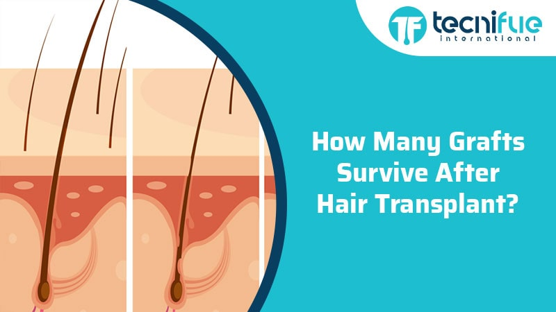 How Many Grafts Survive After Hair Transplant, How Many Grafts Survive After Hair Transplant