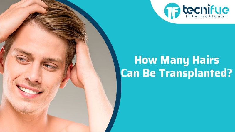 How Many Hairs Can Be Transplanted?, How Many Hairs Can Be Transplanted?