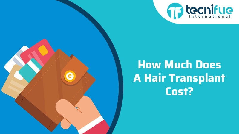 How Much Does A Hair Transplant Cost?, How Much Does A Hair Transplant Cost?