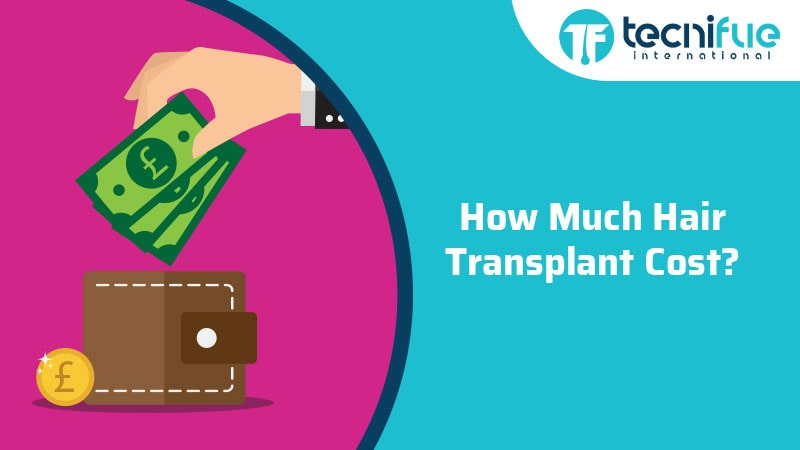 How Much Hair Transplant Cost?