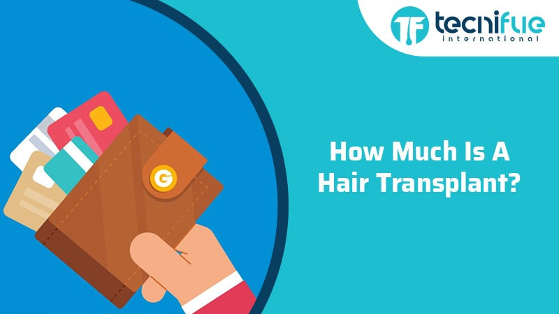 How Much Is A Hair Transplant Surgery?, How Much Is A Hair Transplant Surgery?