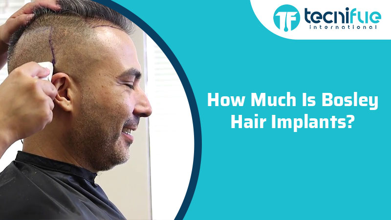 How Much Is Bosley Hair Implants?