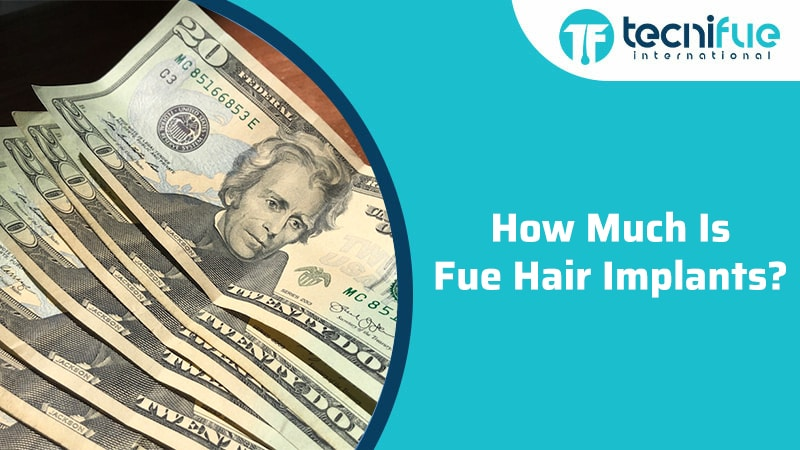 How Much Is Fue Hair Implants?, How Much Is Fue Hair Implants?